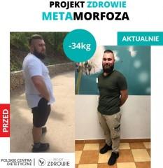 34 kg - tak się chudnie zGabinetem Projekt Zdrowie
